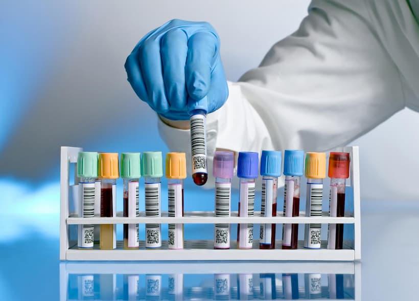 тестування на наркотики